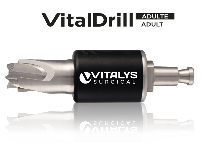 Vitalys Surgical Photo produit